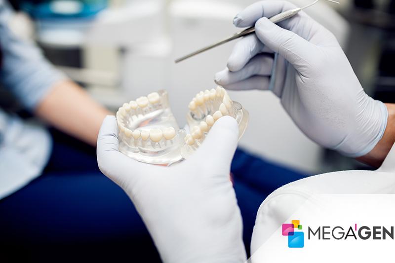 Megagen Dental Implant